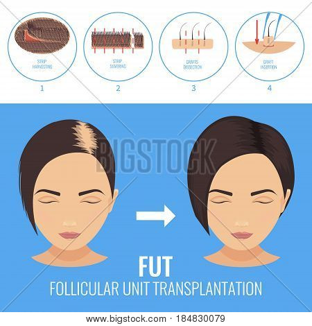 Female hair loss treatment with follicular unit transplantation. Strip method. Stages of FUT procedure. Alopecia medical infographic. Clinics and diagnostic centers concept design. Vector illustration