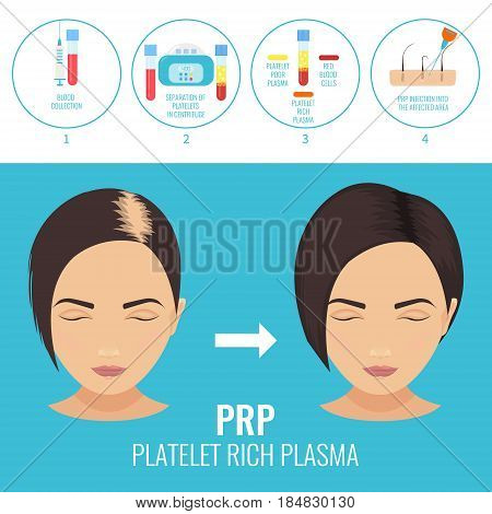 Platelet rich plasma injection procedure. PRP therapy process for women. Female hair loss treatment infographics. Meso therapy. Hair regrowth stimulation method. Vector illustration.