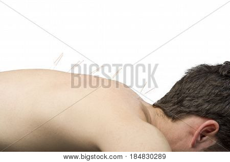 Chinese Medicine Doing Acupuncture To Man Patient In Silhouette Studio On White Background.