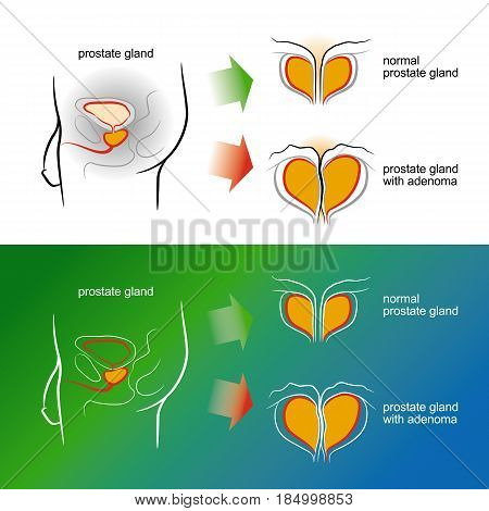 Sketch of a male prostate gland with adenoma. Color vector illustration. Isolated on a white background