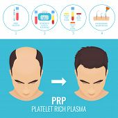 Platelet rich plasma injection procedure. PRP therapy process for men. Male hair loss treatment infographics. Meso therapy. Hair regrowth stimulation method. Vector illustration. poster