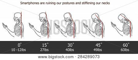 The Bad Smartphone Postures,the Angle Of Bending Head Related To The Pressure On The Spine, Vector F