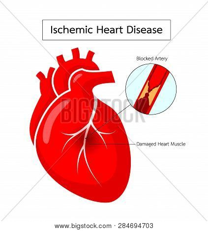 Human Heart With Ischemic Heart Disease Infographic.. Blocked Artery, Damaged Heart Muscle. Heart Aw