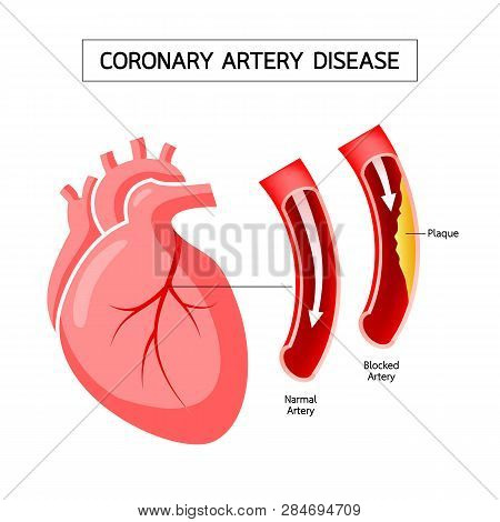 Human Heart With Coronary Artery Disease Infographic. Blocked Artery, Heart Awareness Concept. Illus