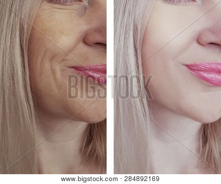 woman wrinkles before and after treatments antiaging poster
