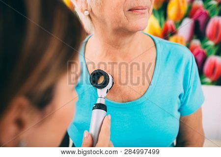 Doctor dermatologist examining her senior patient using dermatoscope. poster
