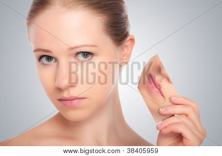 Concept Skincare . Skin Of Beauty Young Woman With Herpes On Lips, Redness, Skin Problems, Acne, Ras