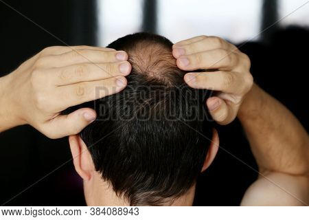 Baldness, Man Concerned About Hair Loss. Male Head With A Bald On Dark Background