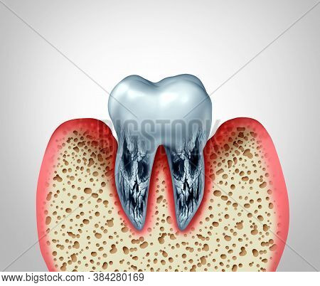 Dead Tooth And Dying Teeth Stomatology Dental Disease And Poor Oral Hygiene Health Problem Due To Ba