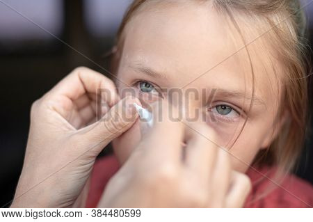 Mom Removes A Foreign Body From Her Daughter's Eye With A Gauze Napkin.