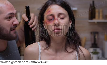 Bruised Woman Looking At The Room While Drunk Husband Screams In The Background. Traumatised Abused