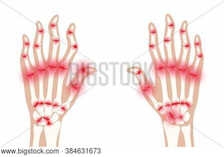 Pain And Inflammation In Hand On X Ray. Rheumatoid Arthritis Symptom On Human Joints And Bones. Skel