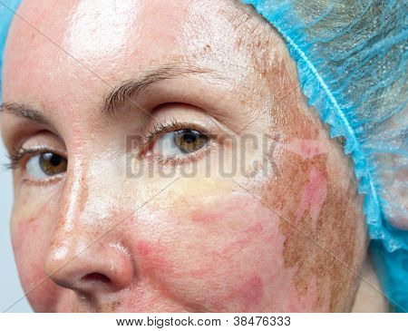 Cosmetology. New skin after a chemical peeling a redness because of too fast deleting an old layer. poster