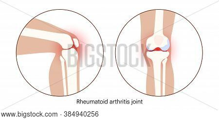 Rheumatoid Arthritis Knee Joint Icon. Clinic Logo With Pain In Leg. Human Bone Anatomy Flat Vector I