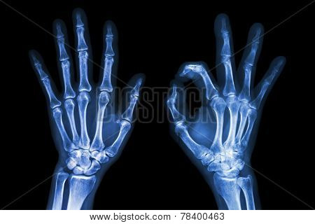 X-ray Both Hands With Ok Sign