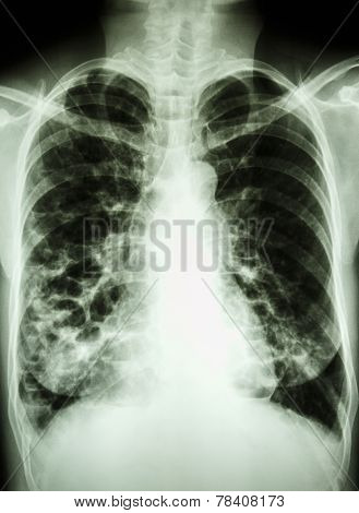 """Bronchiectasis"" film chest X-ray PA upright : show multiple lung bleb at both lung poster"