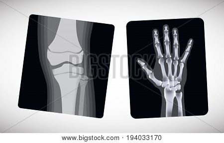 X-ray of the hand and foot. Vector illustration