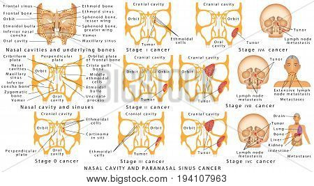 Nose cancer. Nasal Infections. Cancer stage. Human Anatomy - Anatomy of paranasal sinuses. Nasal Cavity and Paranasal Sinus Cancer. Nasal cancer - tumors of the nasal cavity and sinuses.