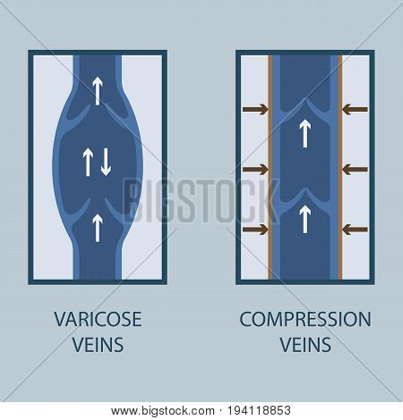 Vector Illustration Of A Varicose Vein And Compression Vein. Flat Style.