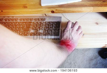Pain in the wrist from working on the computer.Office syndrome