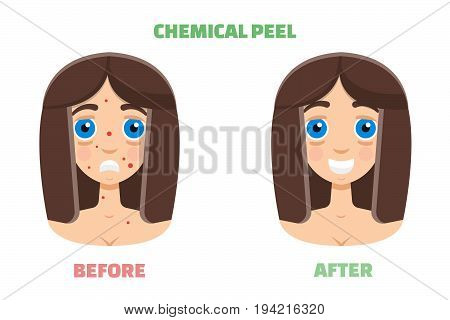 Chemical peeling before and after. Vector illustration