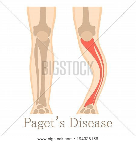 Paget disease icon. Cartoon illustration of paget disease vector icon for web isolated on white background