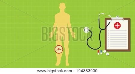 elephantiasis disease elephants foot illustration with mosquito and sthethoscope vector
