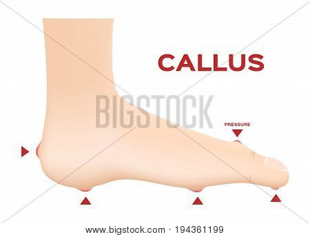 Callus Ischemic and neuropathic Diabetic Foot skin vector