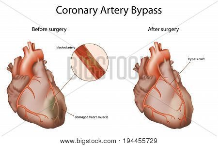Coronary artery bypass, medical vector illustration. Damaged heart muscle, blocked artery, bypass craft