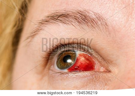 Subconjunctival Hemorrhage - Hyposphagma. Closeup Of Woman's Face Showing Red Bloodshot Eye With Bro