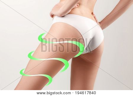Marks on the women's buttocks, waist and legs before plastic surgery.