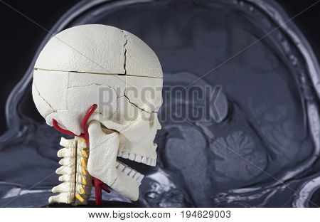 Human skull model on the MRI of the brain background