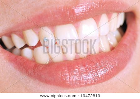 Close-up of patient s open mouth with a diamond tooth - a series of DENTAL related pictures.