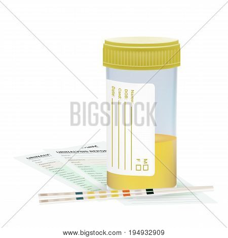 Urine Test Strip With The Plastic Jar Of Urine And Blanks. Medical Examination Isolated On A White Background. Realistic Vector Illustration. Medicine.