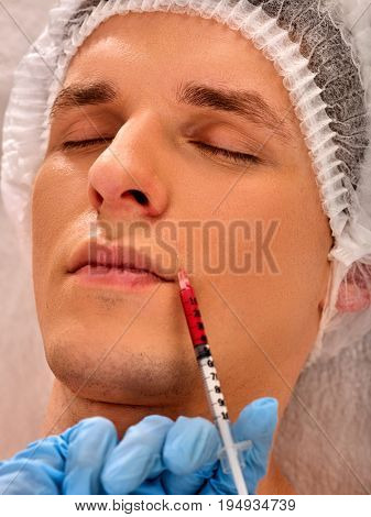 Filler injection for male forehead face. Plastic aesthetic facial surgery in beauty clinic. Man giving anti-aging injections. Close up of doctor in medical gloves with syringe injects nasolabial fold