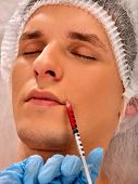Filler injection for male forehead face. Plastic aesthetic facial surgery in beauty clinic. Man giving anti-aging injections. Close up of doctor in medical gloves with syringe injects nasolabial fold poster