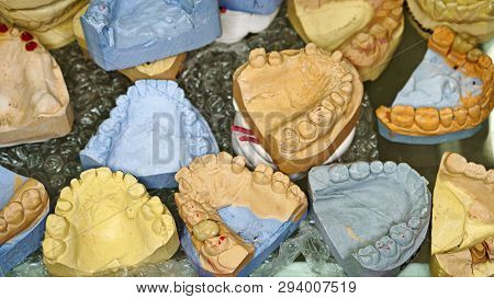 Dental Impressions Of Teeth For Manufacture Of Prostheses And Correcting Bite. Lot Of Plaster Casts