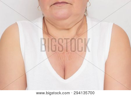 The problematic place for a woman is dry and wrinkled skin in the zone of decollete for a woman, white background, cosmetology, pigmentation poster
