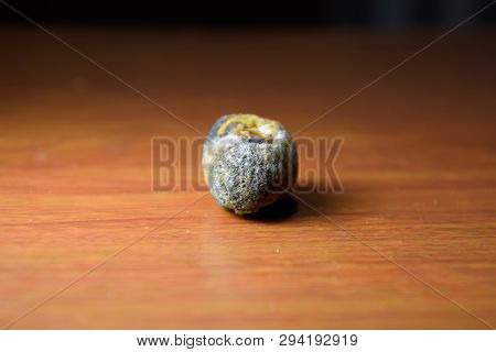 Large gallstone, Gall bladder stone. The result of gallstones. A calculus of heterogeneous composition on a brown background poster