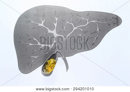 Gall Bladder Stone, Schematic Depiction, Large-sized Gallstone, Result Of Gallstone Disease.