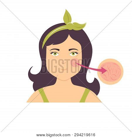 Illustration Of A Girl With Broken Cappilaries. Skin Problem