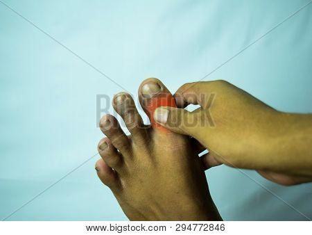 Pain In The Joint Of Big Toe Can Be Discouraging