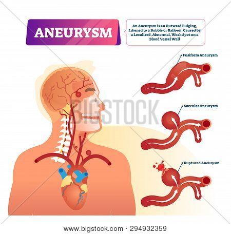 Aneurysm Vector Illustration. Labeled Medical Outward Bulging Vessel Scheme. Educational Anatomical