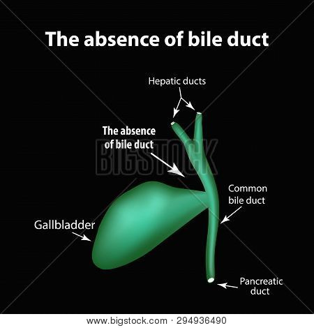 The Absence Of Bile Duct. Pathology Of The Gallbladder. Cholecystitis. The Structure Of The Gallblad