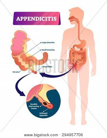Appendicitis Vector Illustration. Labeled Appendix Inflammation Scheme. Anatomical Closeup Diagram W
