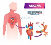 Angina vector illustration. Labeled medical chest pain and heart problem scheme. Educational anatomical health disease with breast pressure. Discomfort tightness feeling because of lack of oxygen. poster