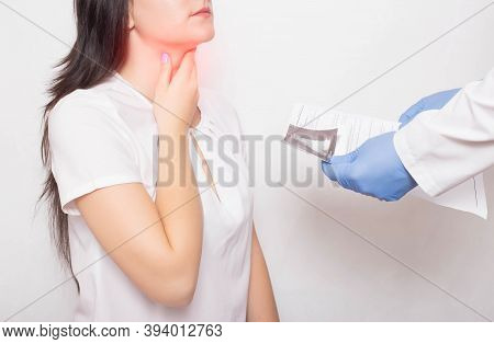 The Doctor Holds The Results Of Examination Of The Girls Throat In His Hands. Concept Of Symptoms An