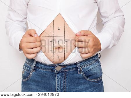 Markers For Plastic Surgery To Reduce Belly Fat Of An Office Worker In A Shirt. Plastic Surgery Conc