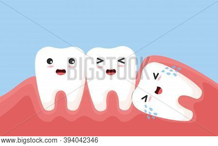Wisdom Tooth Push Other Tooth. Impacted Wisdom Tooth Character Pushing Adjacent Teeth Causing Inflam
