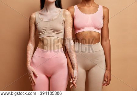 Skin Condition Feminine Concept. Unrecognizable Two Lesbian Women Hold Hands Dressed In Underwear. V